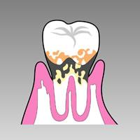歯を支える骨が溶け、歯が抜け落ちる