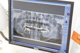 歯周病検査(歯周ポケット検査、レントゲン検査、細菌検査等)